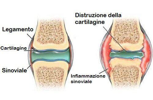 Distruzione delle cartilagini e infiammazione sinoviale