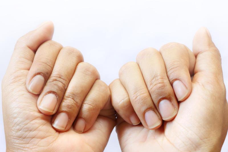 mani chiuse mostrano unghie rovinate
